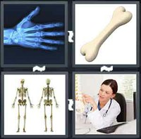 4 Pics 1 Word Bone